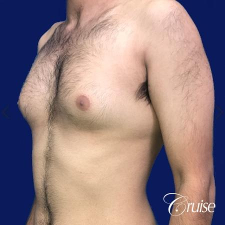 Moderate Gynecomastia Areola Incision - Before and After Image 3