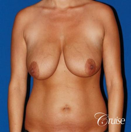 tummy tuck and saline breast lift with large implants on mommy makeover - Before Image 1