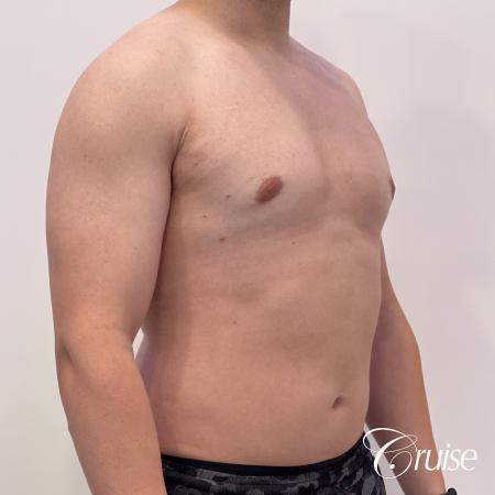 Gynecomastia: Patient 123 - After 4