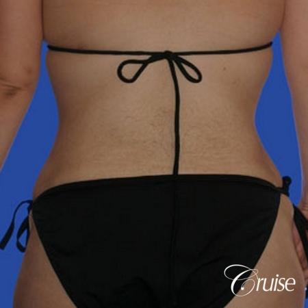 best liposuction tummy tuck -  After Image 3