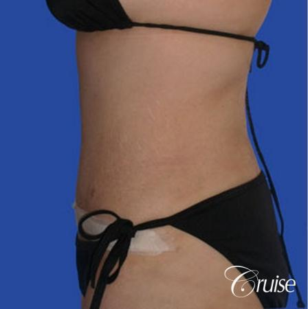 best liposuction tummy tuck -  After Image 2