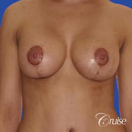 best scars for  breast lift anchor saline in Newport Beach, Orange County -  After Image 1