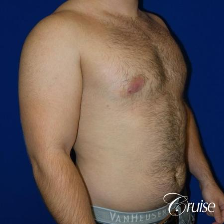 best gynecomastia results -  After Image 4