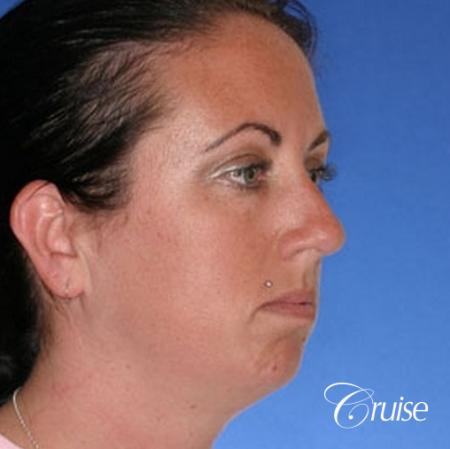 before and after photos of female chin implant - Before Image 3