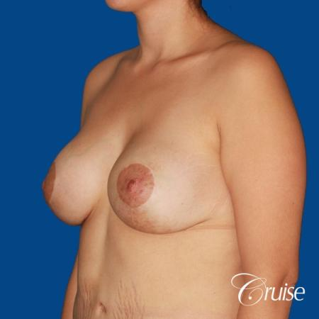 best breast lift anchor with saline augmentation -  After Image 3