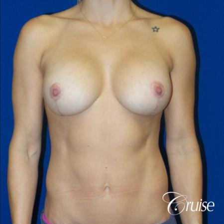 Breast Lift Anchor W/ Silicone Implants On Young Woman - After Image
