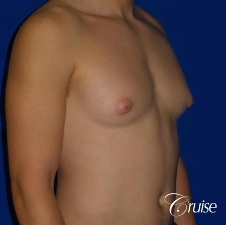 Mild Gynecomastia -Areola Incision - Before and After Image 4