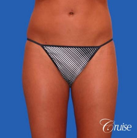 best liposuction abdomen and love handles - After Image