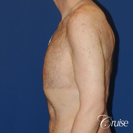 severe weight loss gynecomastia upper body lift - 1 After Image 3