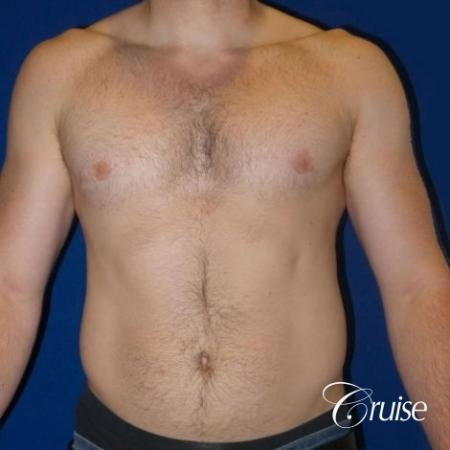Dr. Cruise gynecomastia surgery photos -  After Image 1