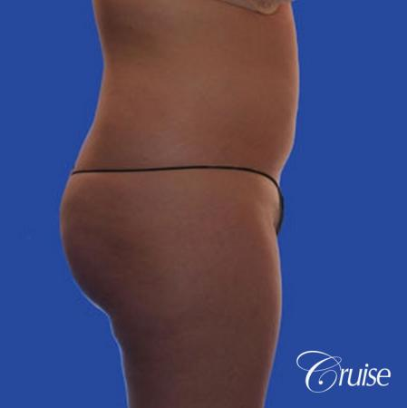 best pictures of liposuction with plastic surgeon in Newport Beach - Before and After Image 5
