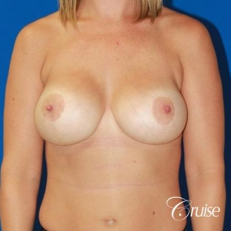 best before and after of breast lift anchor with high profile saline augmentation -  After Image 1