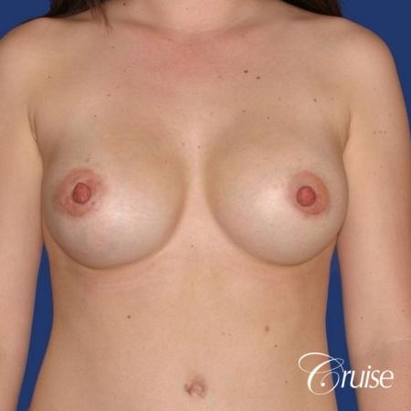 best surgeon for breast revision capsular contracture -  After Image 1