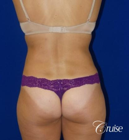 Liposuction -  Flanks - After Image 3
