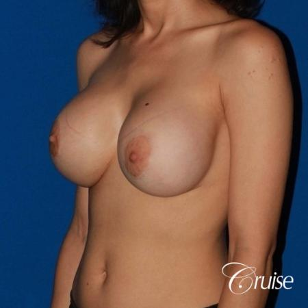 best breast lift revision with moderate profile silicone implants - Before 3
