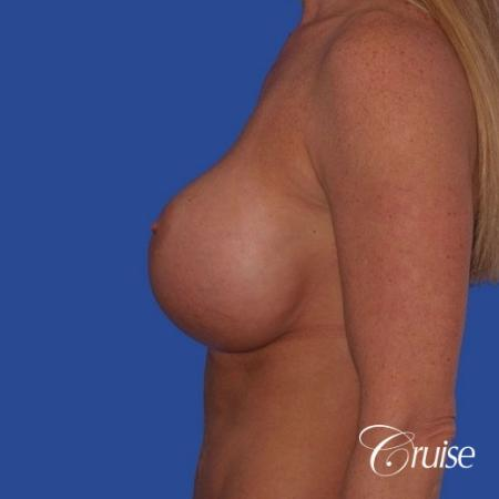 best breast lift anchor photos with HP 475cc implants - Before and After Image 2