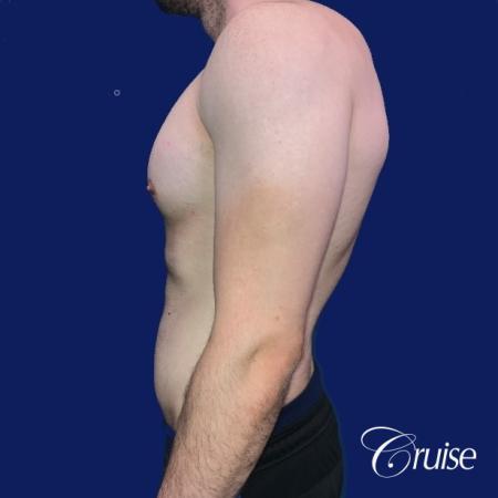 Moderate Gynecomastia -Areola Incision - Before Image 2