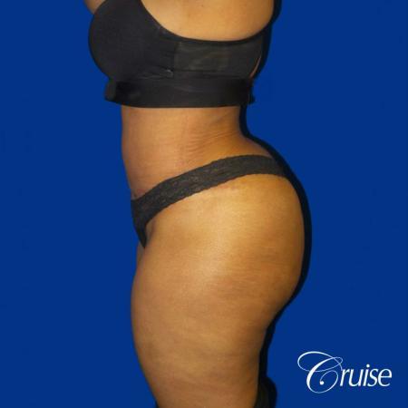 Best Tummy Tuck surgeons Newport Beach -  After Image 3