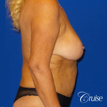 Breast Lift Anchor W/ Silicone Implants On Mature Woman - Before and After Image 3