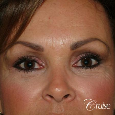 Blepharoplasty - Lower - After Image