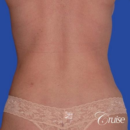 low mini tummy tuck with D cup  breast augmentation -  After Image 3