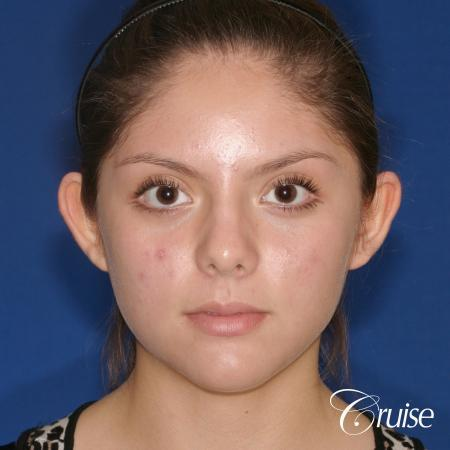 best before and after pictures of otoplasty - Before Image 1
