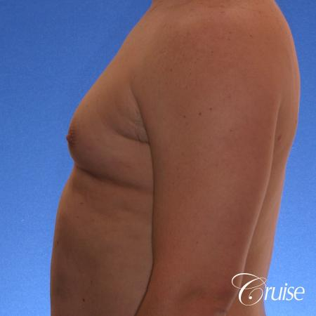 male adult with gynecomastia - Before Image 2