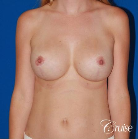 best breast revision for closer cleavage -  After Image 1