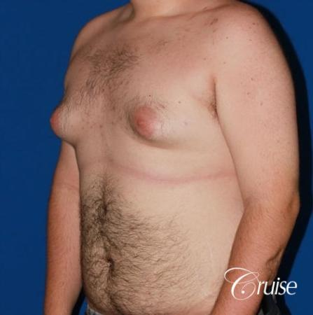 moderate gynecomastia with pointy man boobs - Before Image 3