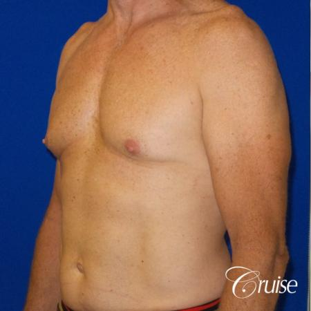 Top Gynecomastia surgeons - Before Image 2