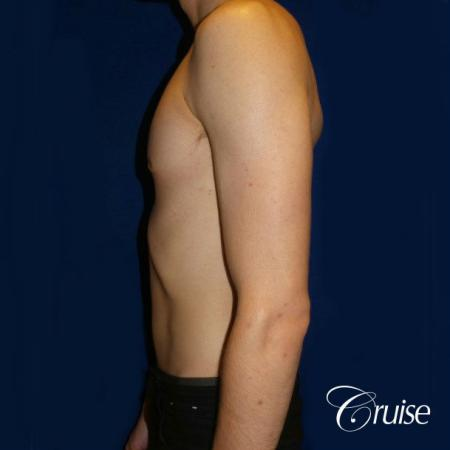 Top Gynecomastia Specialist Dr. Cruise -  After Image 2
