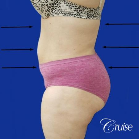 Best liposuction procedures dr cruise -  After Image 2