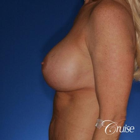 best correction of bottomed out implants revision surgery -  After Image 2