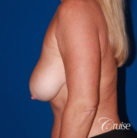 Breast Lift - Saline Augmentation - Before Image 3