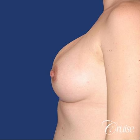 best surgeon for breast revision capsular contracture - Before Image 2