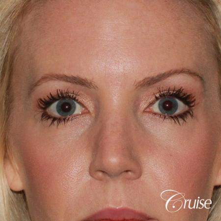 best upper eye lid results - After Image
