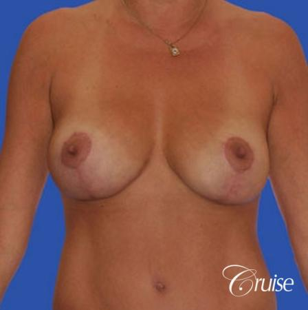 photos of best breast lift anchor with saline implants in Newport Beach -  After Image 1