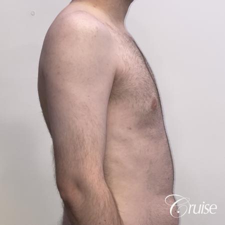 Gynecomastia: Patient 128 - After 4
