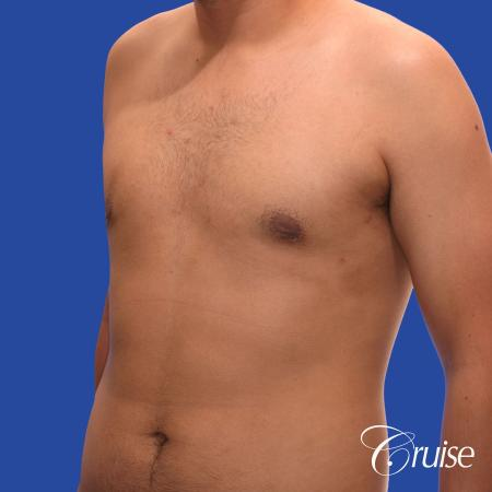 mild gynecomastia standard PA areola incision -  After Image 3