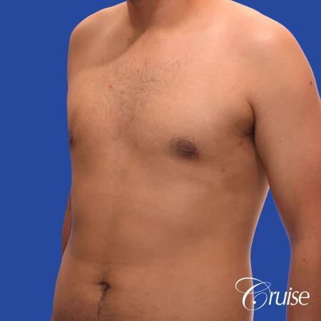 mild gynecomastia standard PA areola incision - After Image 3