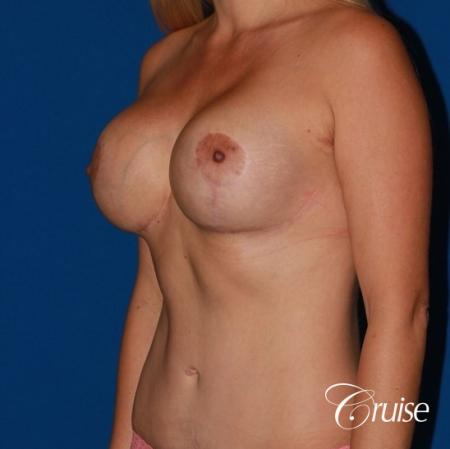 tummy tuck and saline breast lift with large implants on mommy makeover -  After Image 3