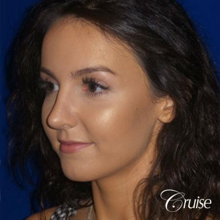 Rhinoplasty Dr. Cruise newport beach -  After Image 4