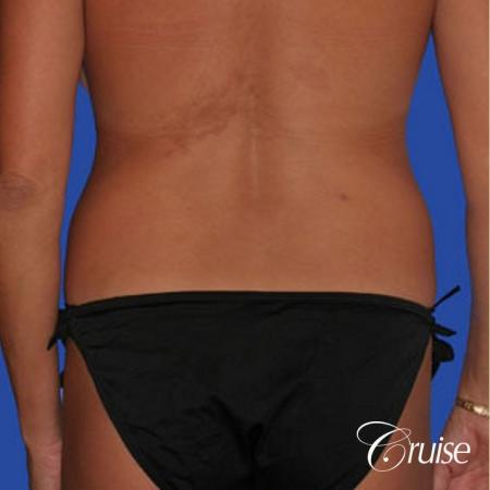 mommy makeover with best breast lift anchor with saline implants - Before and After Image 5