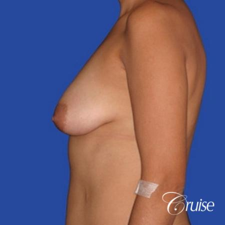 breast lift lollipop before and after - Before Image 2