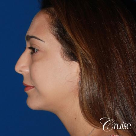 best medium chin implant on young patient -  After Image 2