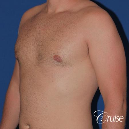 best puffy nipple surgery correction -  After Image 3