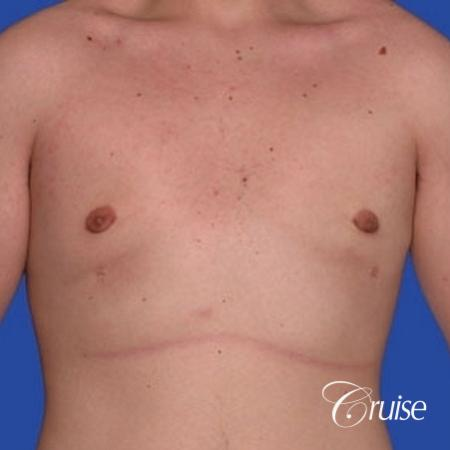 mild gynecomastia with puffy nipple from puberty -  After Image 1
