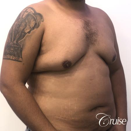 Gynecomastia: Patient 129 - Before and After 4