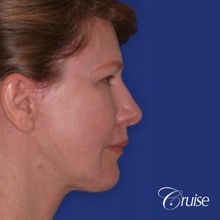 52 year old with chin augmentation and facelift -  After Image 3