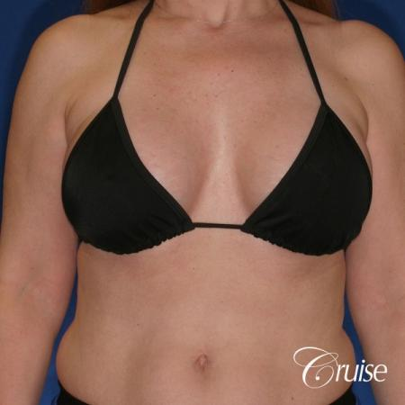 best breast lift donut scars in Newport Beach -  After Image 3